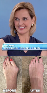 The Best Bunion Surgery