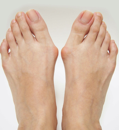 Feet with Bunion