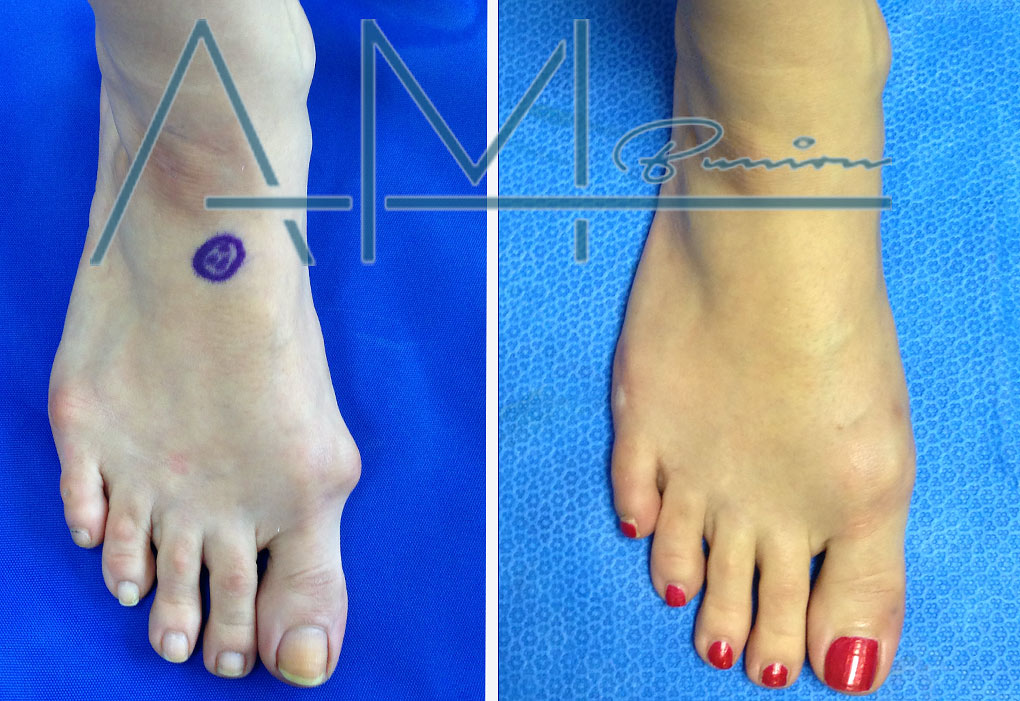 The Only True Minimally Invasive Bunion Surgery